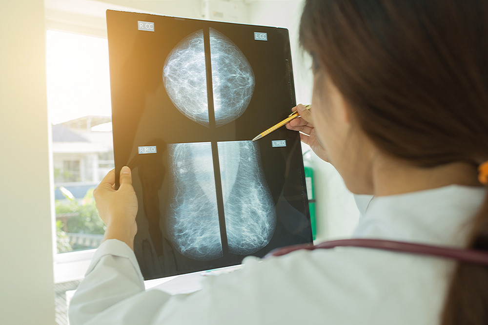 shutterBreast Cancer Mammogram